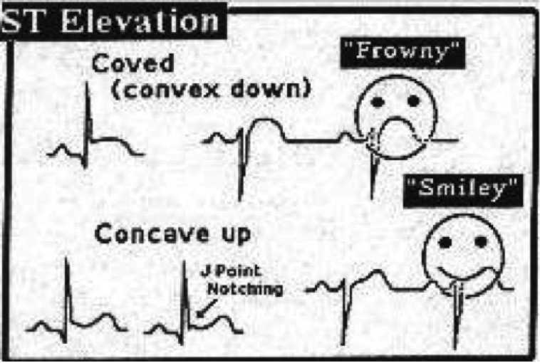 "An illustration for medical students showing a quick way to interpret the ""ST Elevation"" form in an EKG graph using ""smiley"" and ""frowny"" faces"